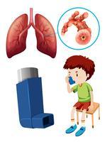 Menino, com, insalubre, pulmões vetor