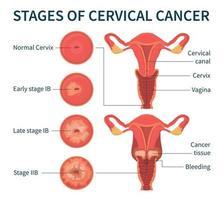 etapas do esquema de infográfico branco de câncer cervical vetor