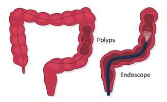 vetor plano de rastreamento de pólipos de câncer colorretal