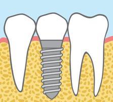 projeto de implante dentário vetor