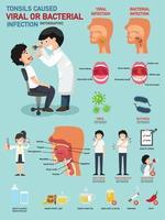 amígdalas causaram infecção viral ou bacteriana vetor