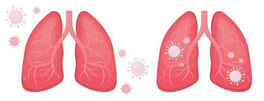 pulmões humanos infectados e covídeo de coronavírus saudável vetor