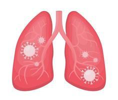 pulmões humanos infectaram pneumonia viral e covid 19 vetor