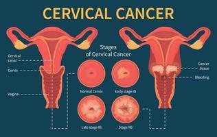 etapas do esquema de infográfico de câncer cervical feminino vetor