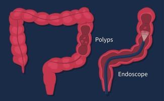 vetor plano de exame de pólipos de câncer colorretal