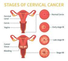 estágios do esquema branco do vetor do câncer cervical