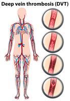 Anatomia de trombose venosa profunda vetor