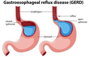 Anatomia da doença do refluxo gastroesofágico vetor