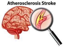 Aterosclerose AVC no fundo branco vetor