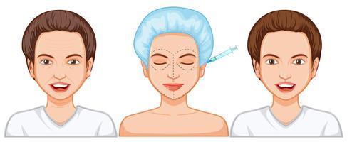 Comparação de injeção de botox feminina