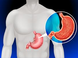 Câncer de estômago em humanos vetor