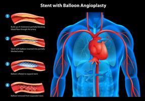 Stent com angioplastia com balão vetor
