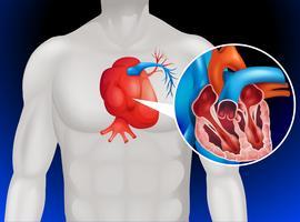 Diagrama de doença cardíaca em detalhe vetor
