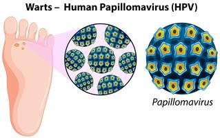 Diagrama mostrando verrugas no pé humano vetor