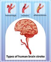 Tipos de acidente vascular cerebral humano vetor