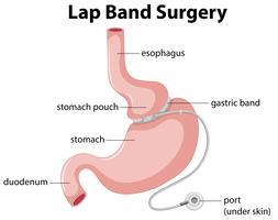 Diagrama de cirurgia de banda de volta vetor