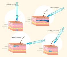 Diferentes tipos de injeções vetor