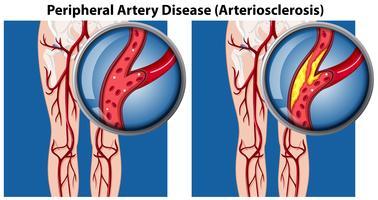 Uma comparação de doença arterial periférica vetor
