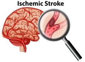 Conceito de acidente vascular cerebral isquêmico ampliado vetor