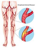 Diagrama de doença arterial periférica vetor