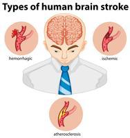 Tipos de acidente vascular cerebral em humanos vetor