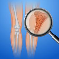 Osso humano com osteoporose vetor