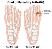 Explicação do diagrama da gota no pé humano vetor