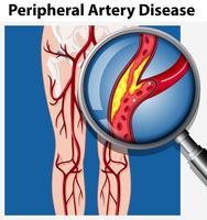 Humano com Doença Arterial Periférica vetor