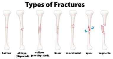 Um conjunto de fraturas ósseas vetor
