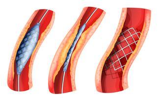 Stent usado para abrir a artéria bloqueada vetor