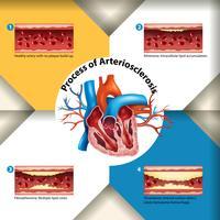Cartaz do Processo de Arteriosclerose vetor