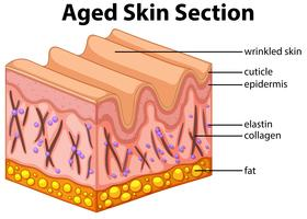 Diagrama de seção de pele envelhecida vetor