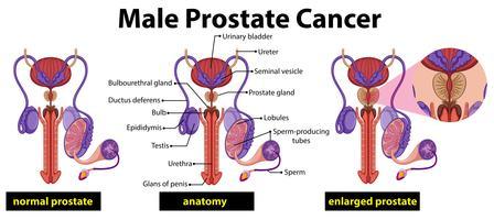 Diagrama de câncer de próstata masculino vetor