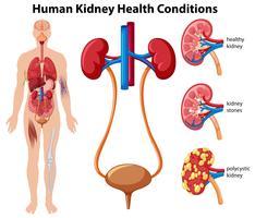 Condições de saúde do rim humano vetor