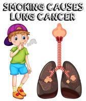 Menino fumando cigarro e câncer de pulmão vetor