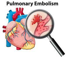 Embolia pulmonar por anormalidade humana vetor