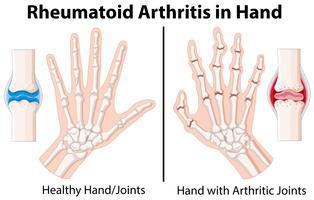 Diagrama mostrando artrite reumatóide na mão vetor