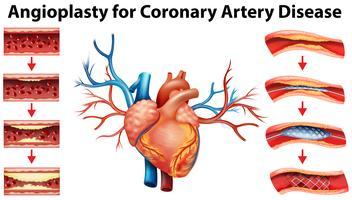 Diagrama mostrando angioplastia para doença arterial coronariana vetor