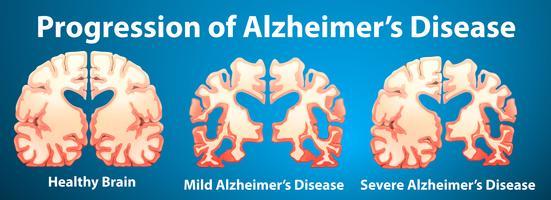 Progressão da doença de Alzheimer em fundo azul vetor