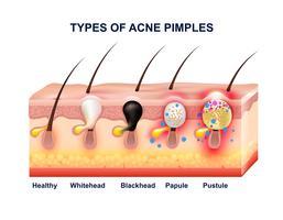 Composição da anatomia da acne da pele vetor