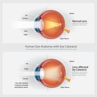 Catarata, visão, desordem, e, normal, olho, visão, anatomia, vetorial, ilustração