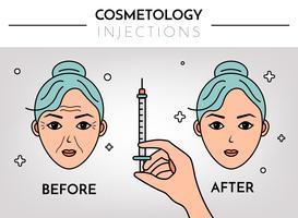 Injeções cosméticas. Infográficos antes e depois. Ilustração em vetor plana com lugar para texto. Mesoterapia, rejuvenescimento.