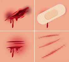 Conjunto de ferida fresca