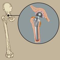 Prótese de artroplastia não cimentada vetor