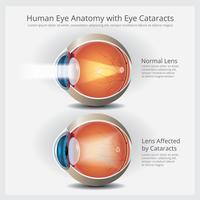 Anatomia do olho com ilustração vetorial de anormalidades do olho vetor