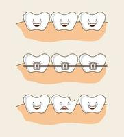 Conjunto de imagens de dentes dentais dos desenhos animados