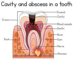 Cavidade e abscesso no dente vetor