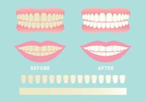 Vetores de dentes limpos e sujos