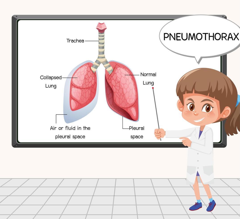 giovane scienziato spiega il pneumotorace davanti a una tavola in laboratorio vettore