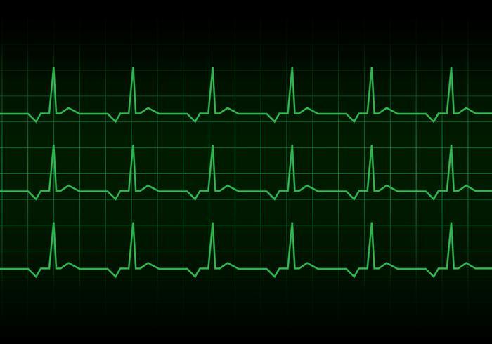 Vettore del monitor del ritmo cardiaco del battito cardiaco